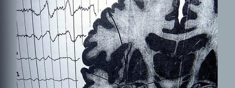 Марихуана увеличивает фазу глубокого сна