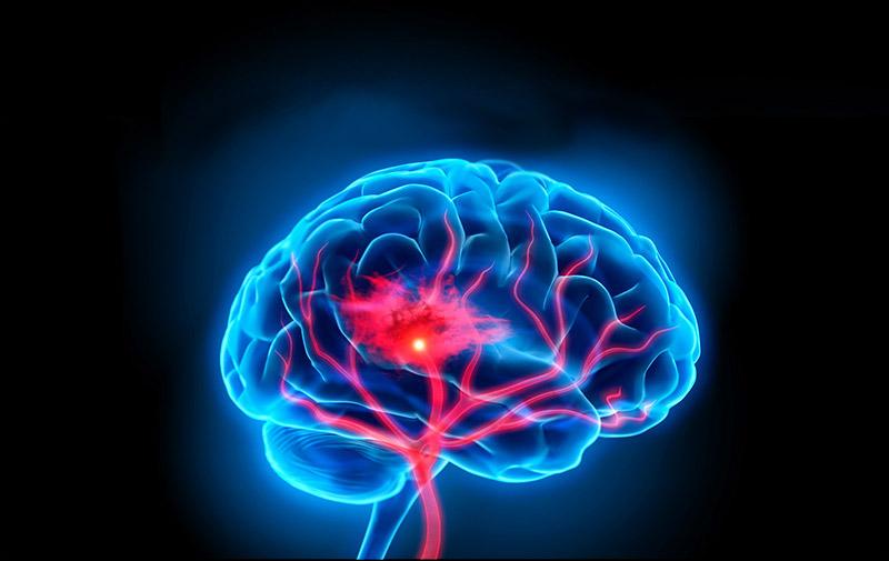 Научные исследования подтверждают, что марихуана снижает риск инсульта.
