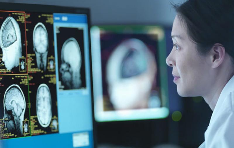 Ученые изучают человеческий мозг под влиянием марихуаны