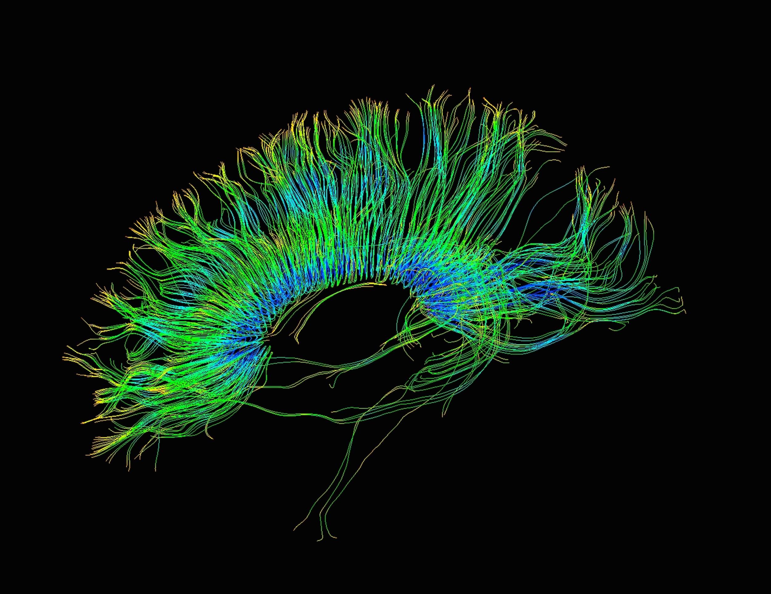 Согласно исследованию под началом доктора наук Стейси Грубер из больницы Маклин, марихуана повышает эффективность когнитивных задач, опосредуемых лобной корой.