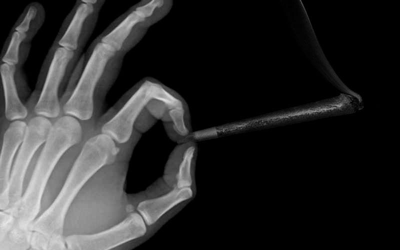 Рентген руки и косяка с травой