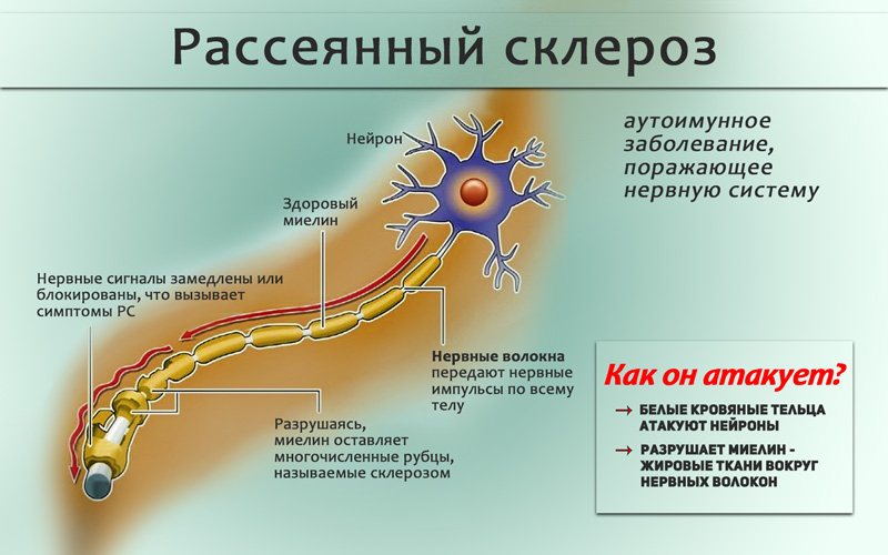 Что такое рассеянный склероз